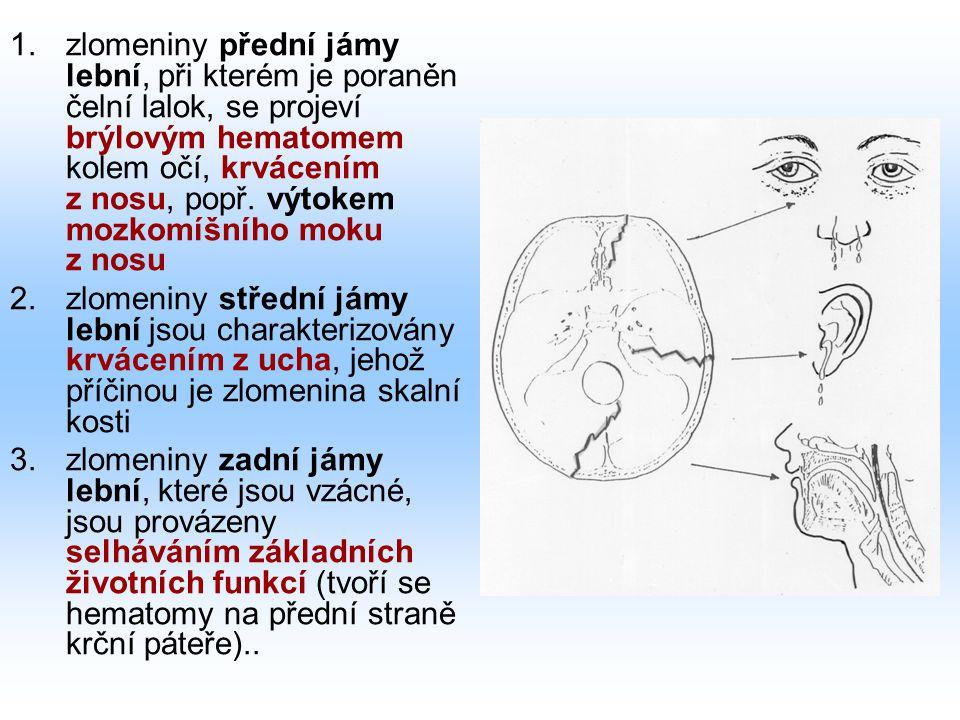 1.zlomeniny přední jámy lební, při kterém je poraněn čelní lalok, se projeví brýlovým hematomem kolem očí, krvácením z nosu, popř. výtokem mozkomíšníh