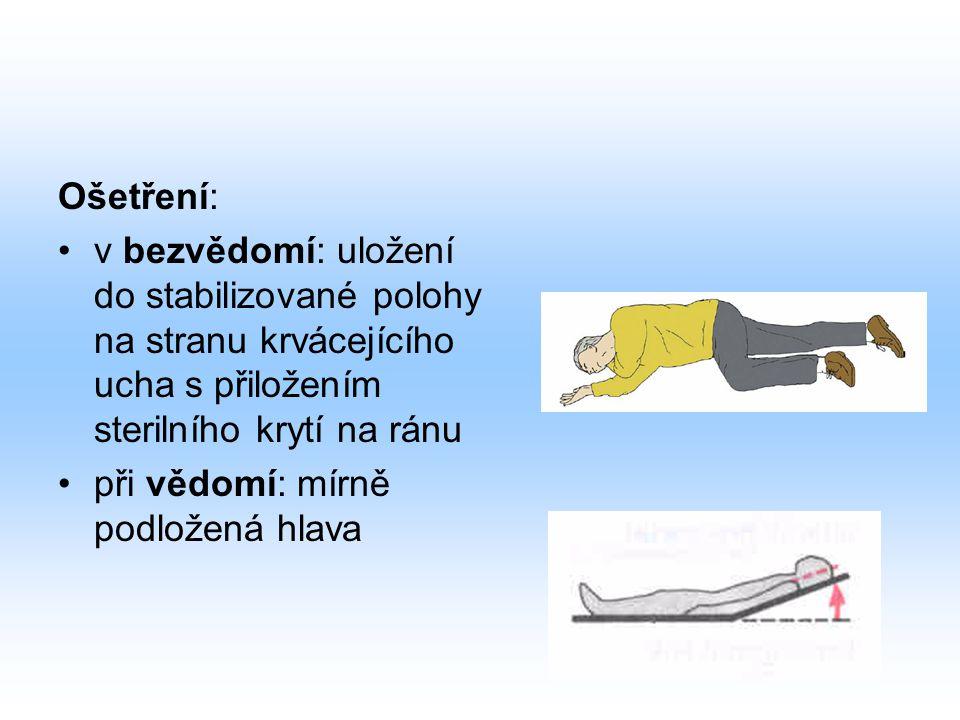 Ošetření: v bezvědomí: uložení do stabilizované polohy na stranu krvácejícího ucha s přiložením sterilního krytí na ránu při vědomí: mírně podložená h