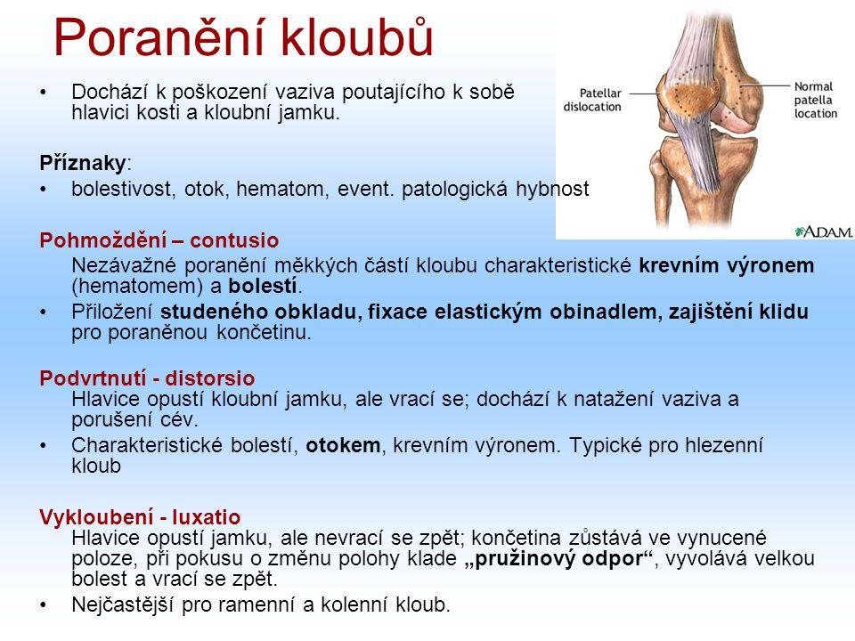 Dochází k poškození vaziva poutajícího k sobě hlavici kosti a kloubní jamku. Příznaky: bolestivost, otok, hematom, event. patologická hybnost Pohmoždě