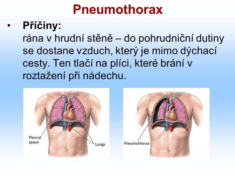 Pneumothorax Příčiny: rána v hrudní stěně – do pohrudniční dutiny se dostane vzduch, který je mimo dýchací cesty. Ten tlačí na plíci, které brání v ro