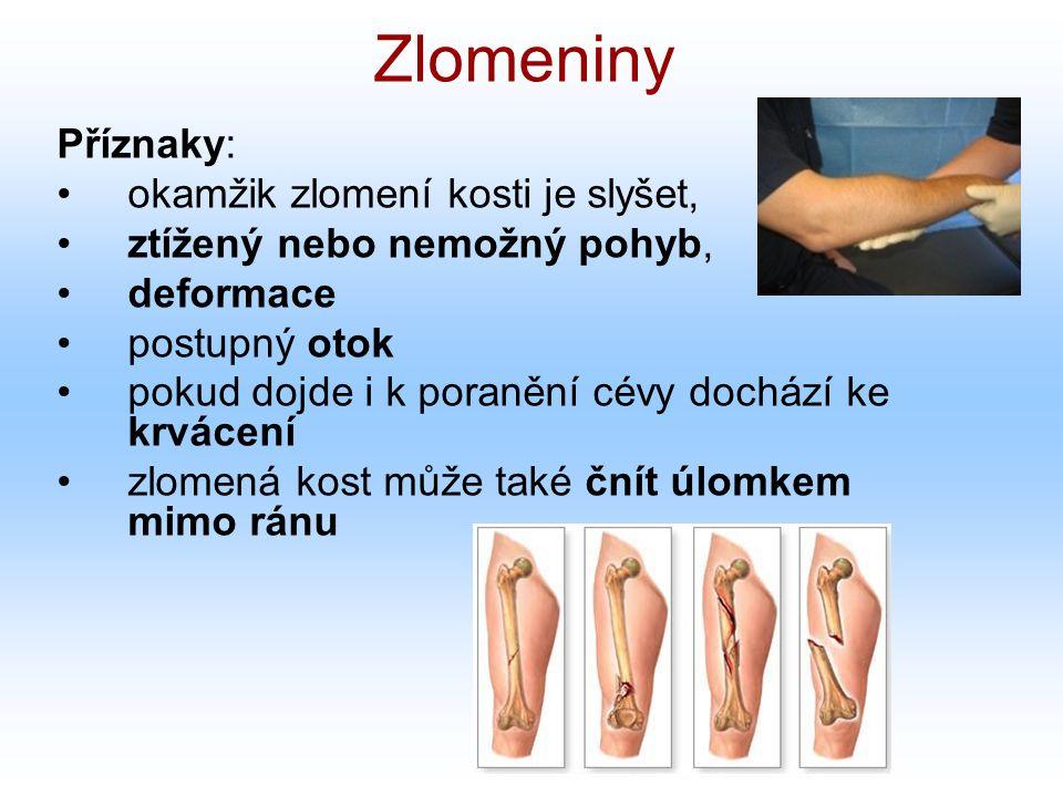 Zlomeniny Příznaky: okamžik zlomení kosti je slyšet, ztížený nebo nemožný pohyb, deformace postupný otok pokud dojde i k poranění cévy dochází ke krvá