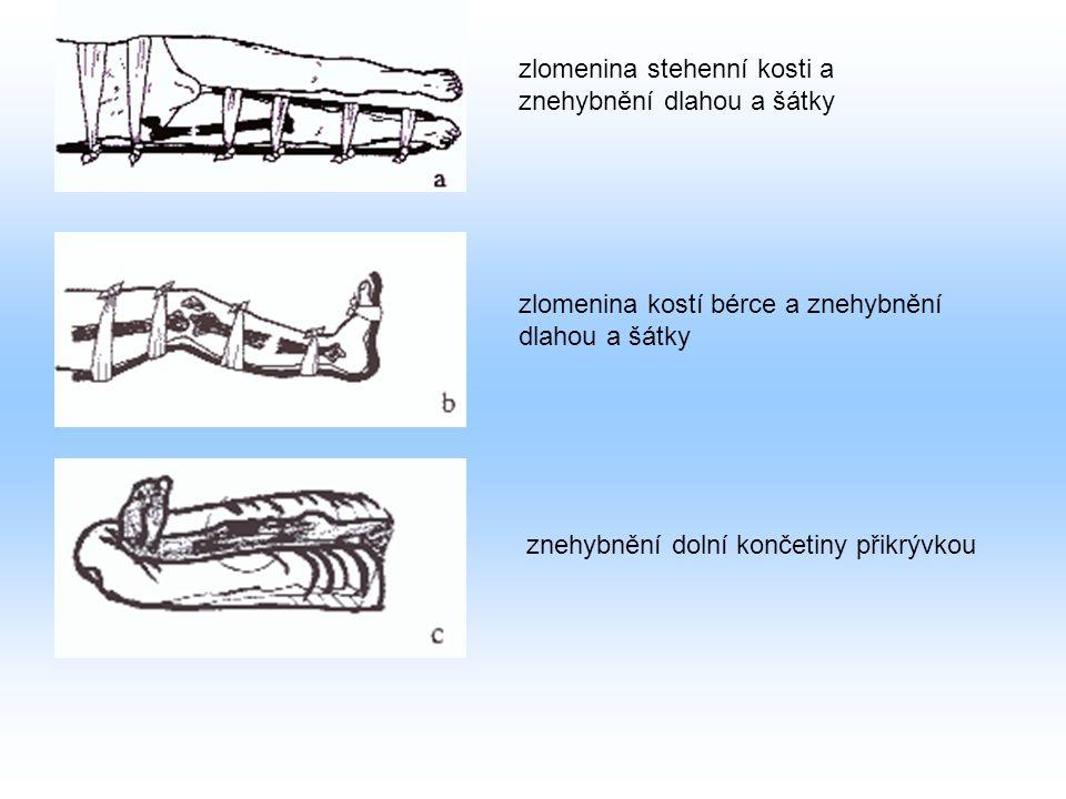 zlomenina stehenní kosti a znehybnění dlahou a šátky zlomenina kostí bérce a znehybnění dlahou a šátky znehybnění dolní končetiny přikrývkou