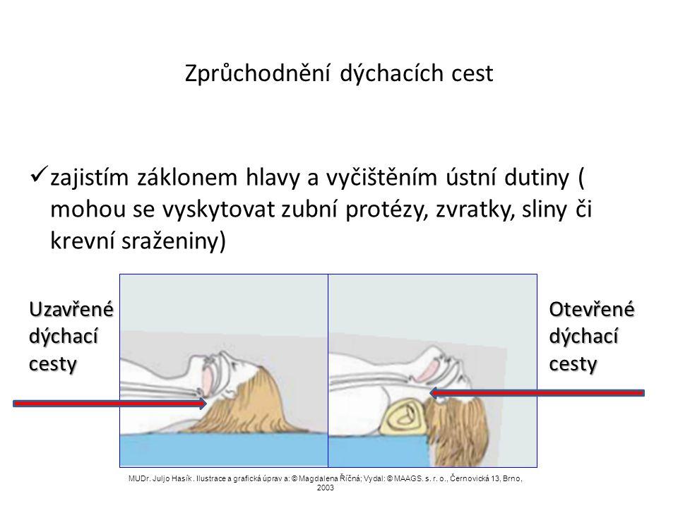 Odstranění cizího tělesa z dýchacích cest MUDr. Juljo Hasík.