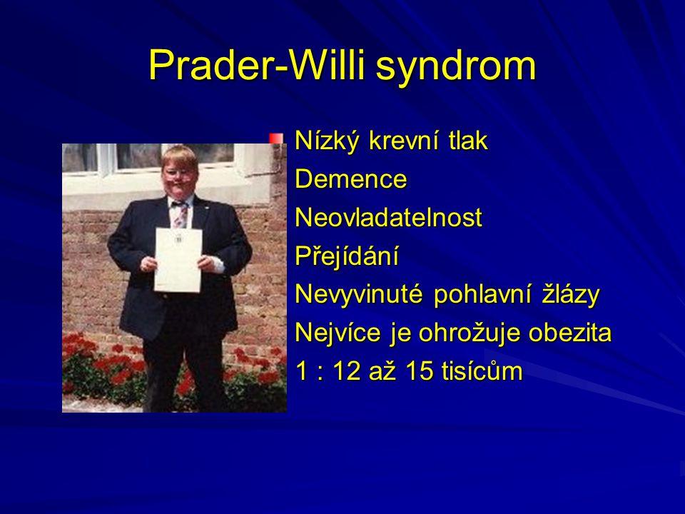 Prader-Willi syndrom Nízký krevní tlak DemenceNeovladatelnostPřejídání Nevyvinuté pohlavní žlázy Nejvíce je ohrožuje obezita 1 : 12 až 15 tisícům