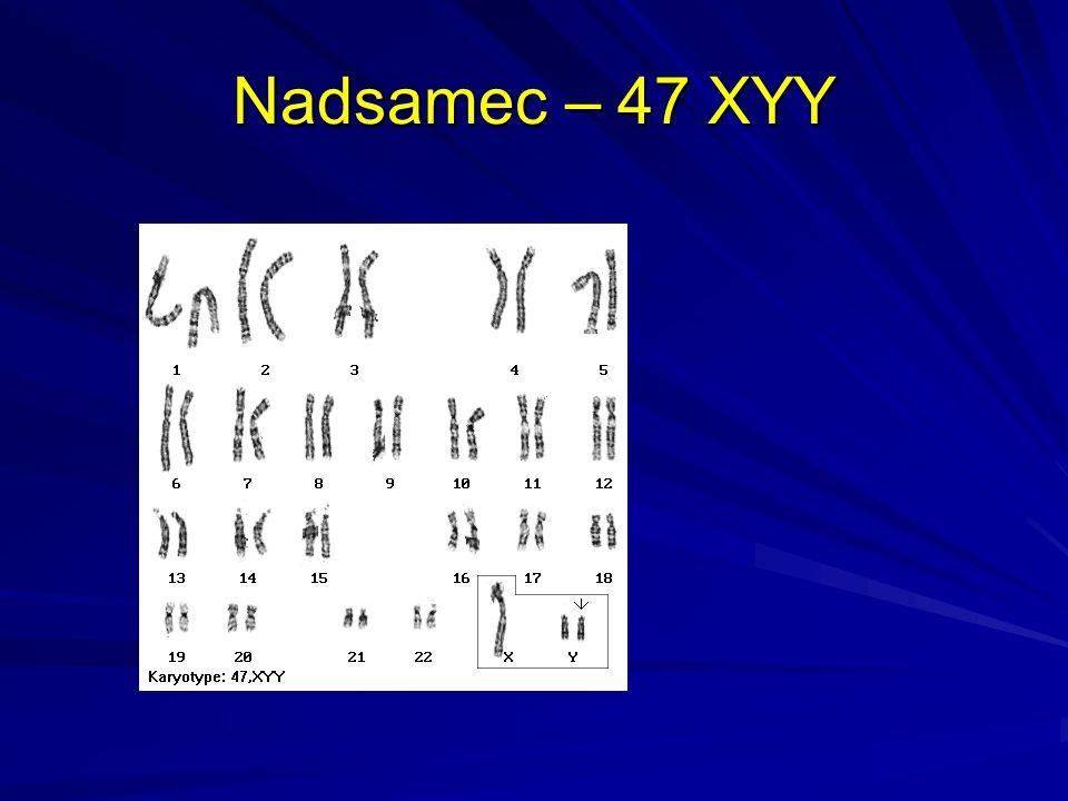 Nadsamice – 47 XXX
