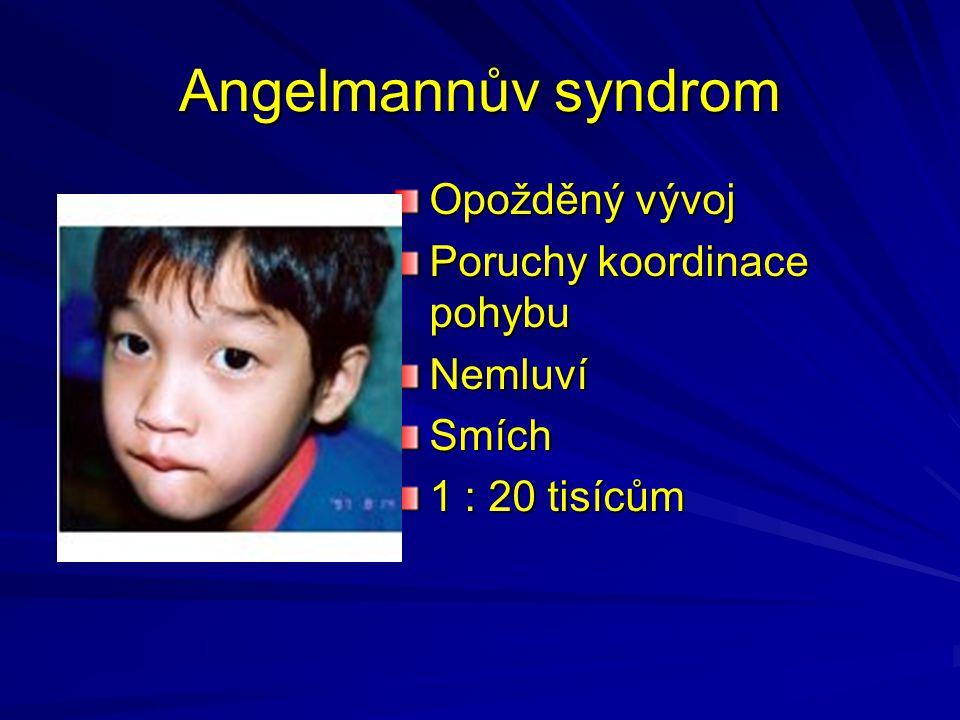 Angelmannův syndrom Opožděný vývoj Poruchy koordinace pohybu NemluvíSmích 1 : 20 tisícům