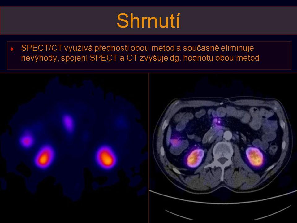 Shrnutí  SPECT/CT využívá přednosti obou metod a současně eliminuje nevýhody, spojení SPECT a CT zvyšuje dg. hodnotu obou metod