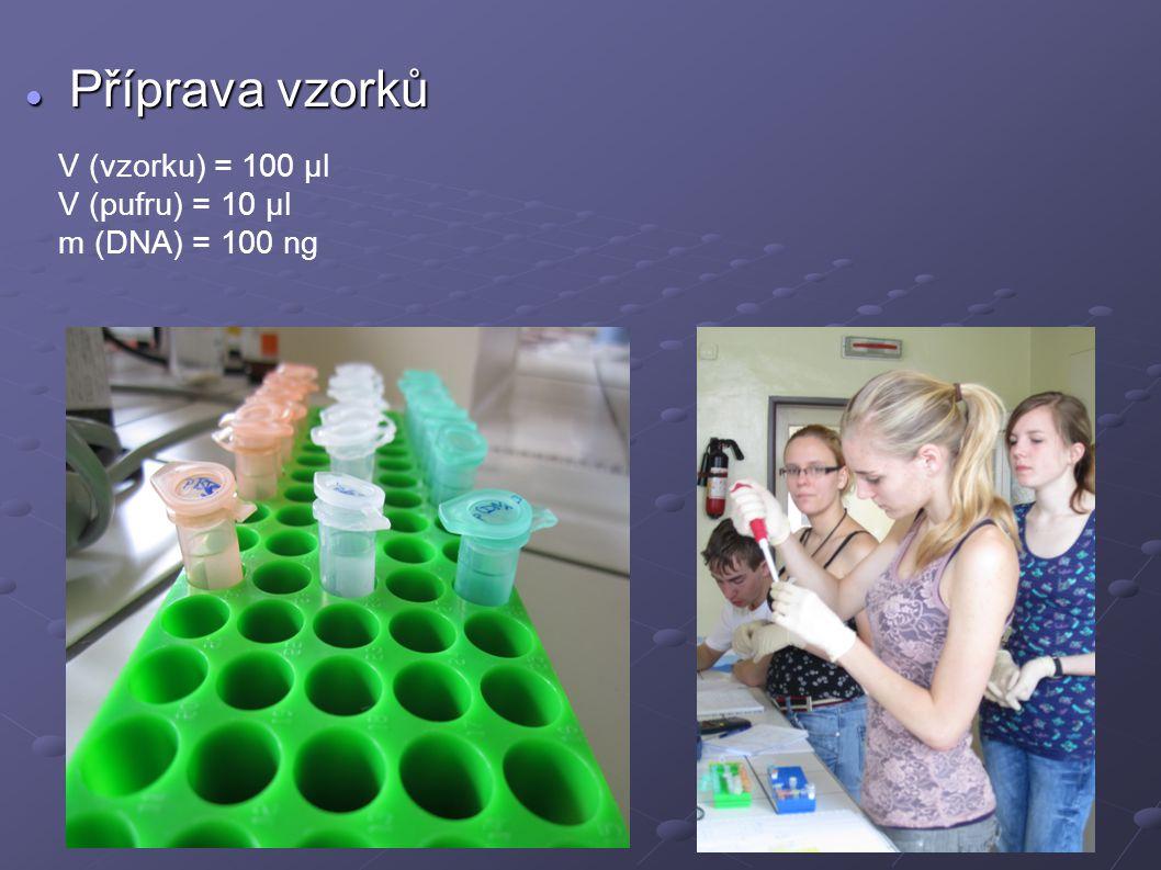 Příprava gelu Příprava gelu 1% gel m (agarosa) = 0,4 g V (0,5 x TAE) = 40 ml