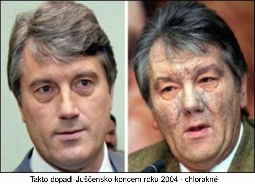 Takto dopadl Juščensko koncem roku 2004 - chlorakné