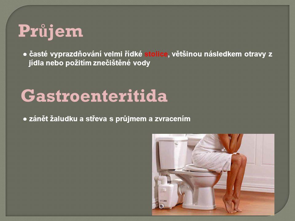 Pr ů jem ● časté vyprazdňování velmi řídké stolice, většinou následkem otravy z jídla nebo požitím znečištěné vody Gastroenteritida ● zánět žaludku a střeva s průjmem a zvracením