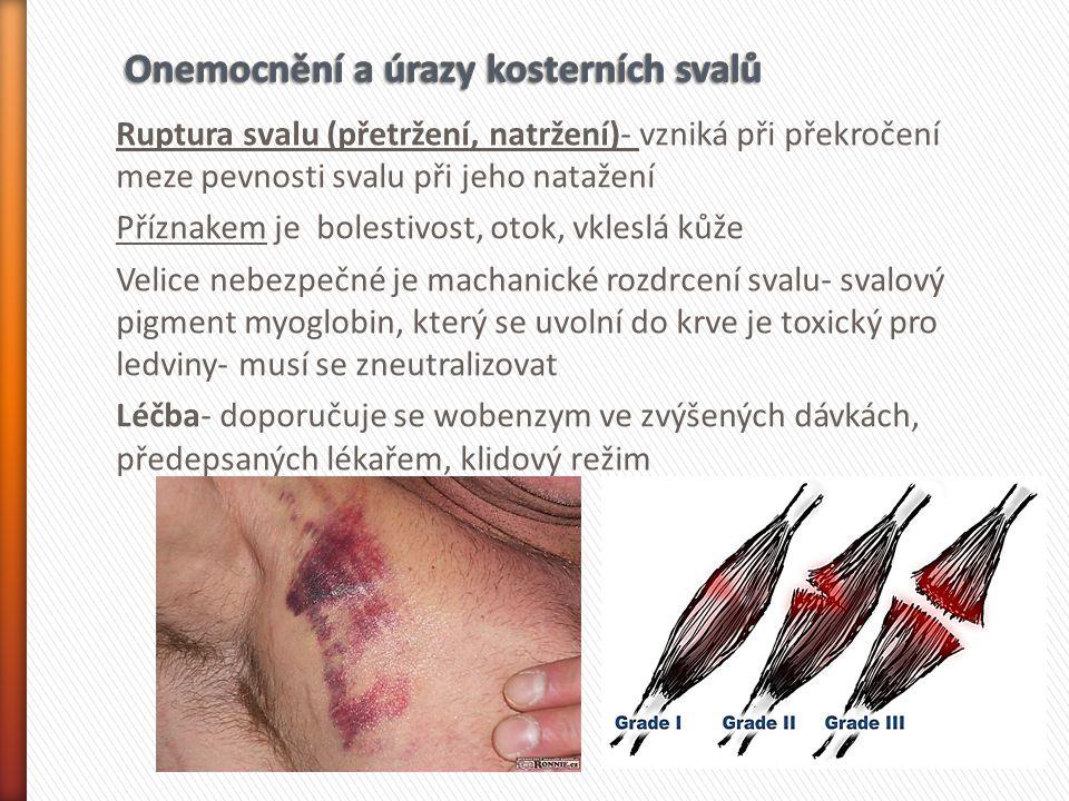 Ruptura svalu (přetržení, natržení)- vzniká při překročení meze pevnosti svalu při jeho natažení Příznakem je bolestivost, otok, vkleslá kůže Velice n