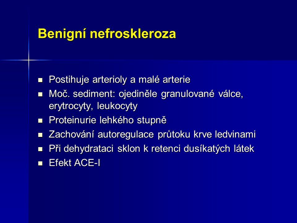 Benigní nefroskleroza Postihuje arterioly a malé arterie Postihuje arterioly a malé arterie Moč. sediment: ojediněle granulované válce, erytrocyty, le