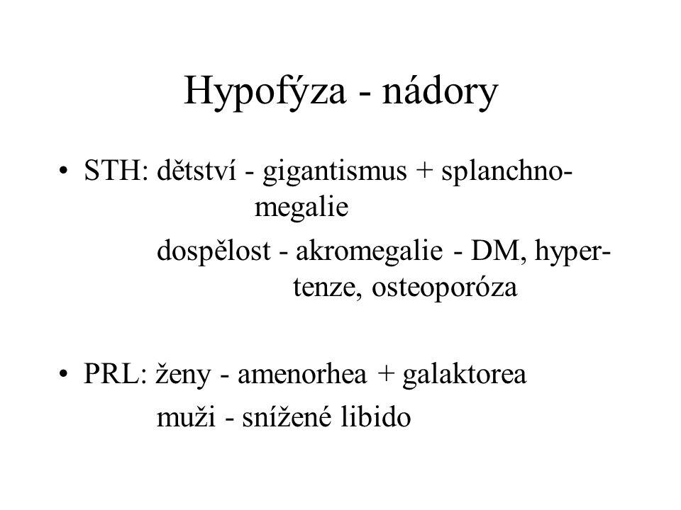 Hypofýza - nádory STH: dětství - gigantismus + splanchno- megalie dospělost - akromegalie - DM, hyper- tenze, osteoporóza PRL: ženy - amenorhea + gala