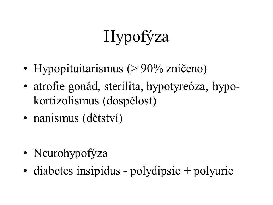 Hypofýza Hypopituitarismus (> 90% zničeno) atrofie gonád, sterilita, hypotyreóza, hypo- kortizolismus (dospělost) nanismus (dětství) Neurohypofýza diabetes insipidus - polydipsie + polyurie