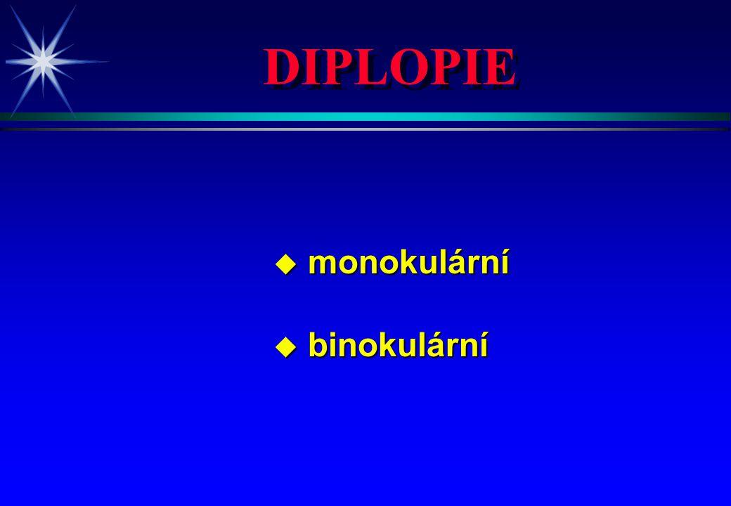 DIPLOPIE u monokulární u binokulární