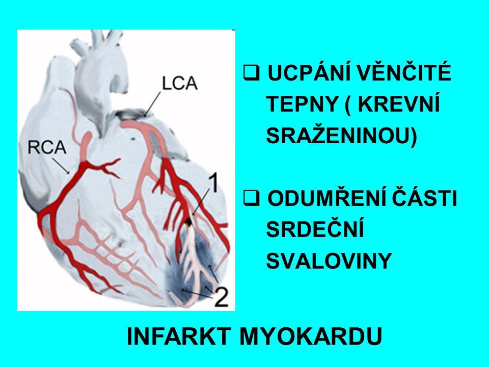  UCPÁNÍ VĚNČITÉ TEPNY ( KREVNÍ SRAŽENINOU)  ODUMŘENÍ ČÁSTI SRDEČNÍ SVALOVINY INFARKT MYOKARDU
