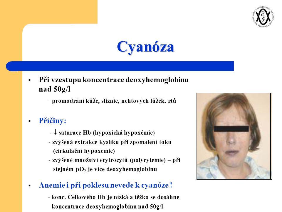 Cyanóza  Při vzestupu koncentrace deoxyhemoglobinu nad 50g/l - promodrání kůže, sliznic, nehtových lůžek, rtů  Příčiny: -  saturace Hb (hypoxická h