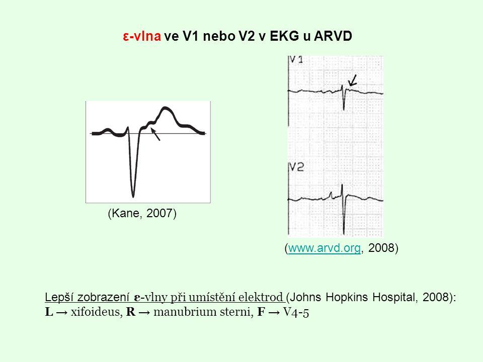 (Kane, 2007) Lepší zobrazení ε-vlny při umístění elektrod (Johns Hopkins Hospital, 2008) : L → xifoideus, R → manubrium sterni, F → V4-5 ε-vlna ve V1