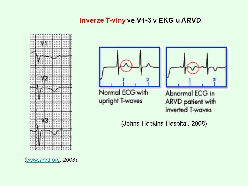 (www.arvd.org, 2008)www.arvd.org Inverze T-vlny ve V1-3 v EKG u ARVD (Johns Hopkins Hospital, 2008)