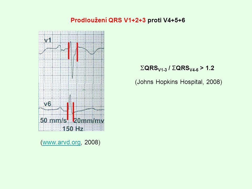 Prodloužení QRS V1+2+3 proti V4+5+6 (www.arvd.org, 2008)www.arvd.org Σ QRS V1-3 / ΣQRS V4-6 > 1.2 (Johns Hopkins Hospital, 2008)