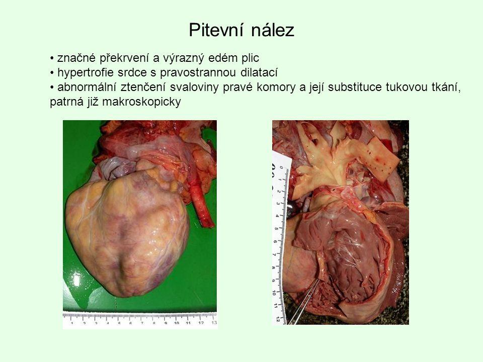 Pitevní nález značné překrvení a výrazný edém plic hypertrofie srdce s pravostrannou dilatací abnormální ztenčení svaloviny pravé komory a její substi