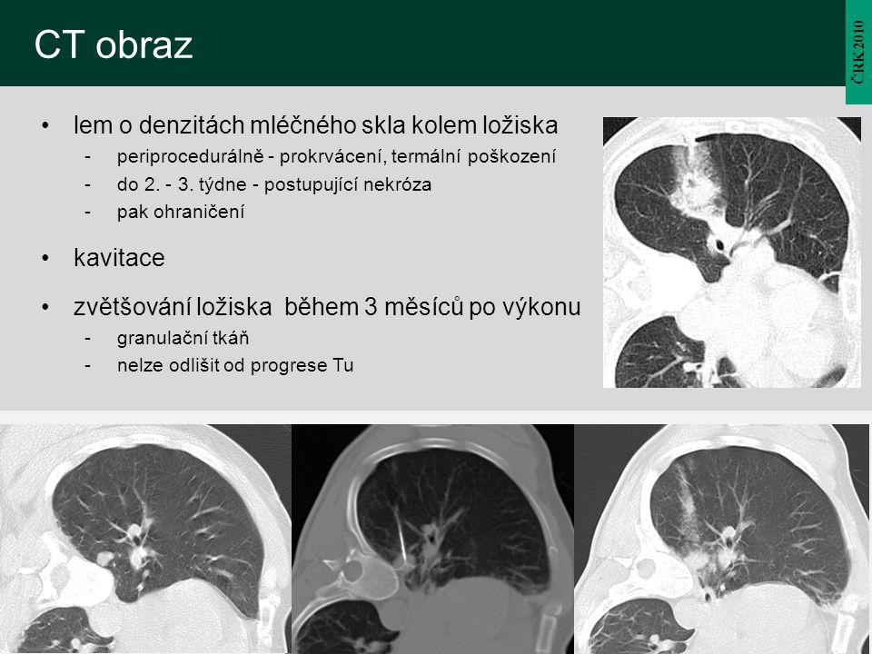 ČRK 2010 CT obraz lem o denzitách mléčného skla kolem ložiska -periprocedurálně - prokrvácení, termální poškození -do 2. - 3. týdne - postupující nekr