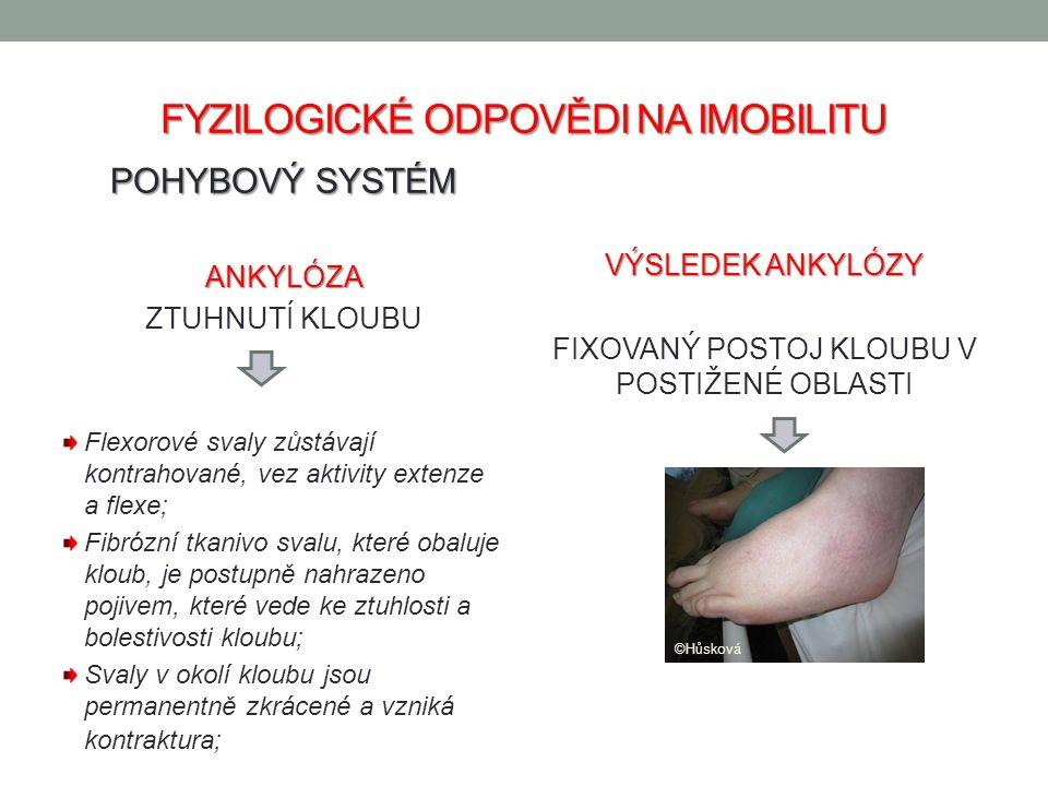 FYZILOGICKÉ ODPOVĚDI NA IMOBILITU POHYBOVÝ SYSTÉM ANKYLÓZA ZTUHNUTÍ KLOUBU Flexorové svaly zůstávají kontrahované, vez aktivity extenze a flexe; Fibró