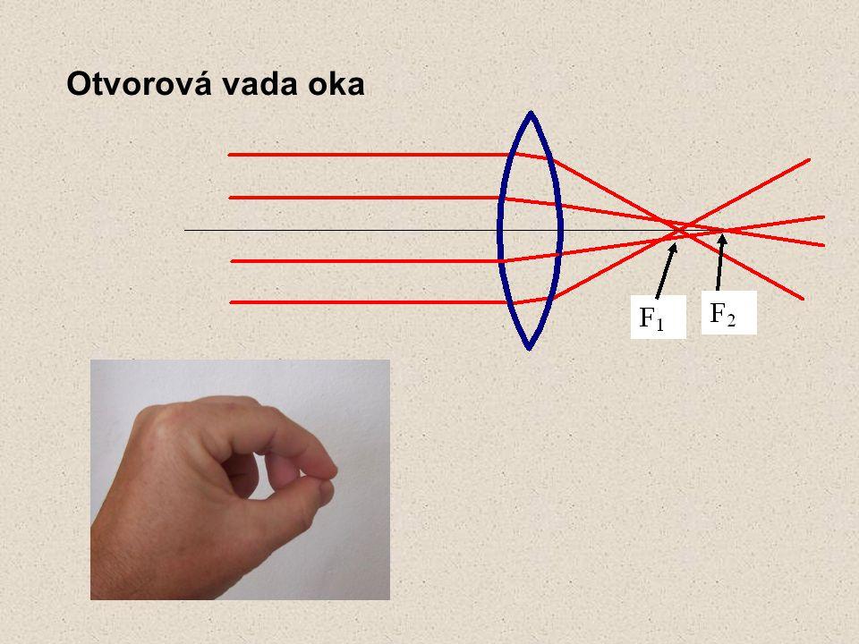 Otvorová vada oka