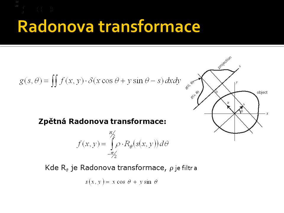 Zpětná Radonova transformace: Kde R  je Radonova transformace,  je filtr a