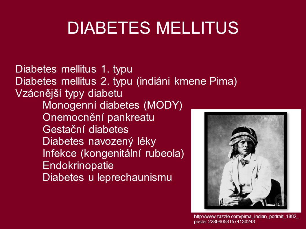 DIABETES MELLITUS Diabetes mellitus 1. typu Diabetes mellitus 2. typu (indiáni kmene Pima) Vzácnější typy diabetu Monogenní diabetes (MODY) Onemocnění