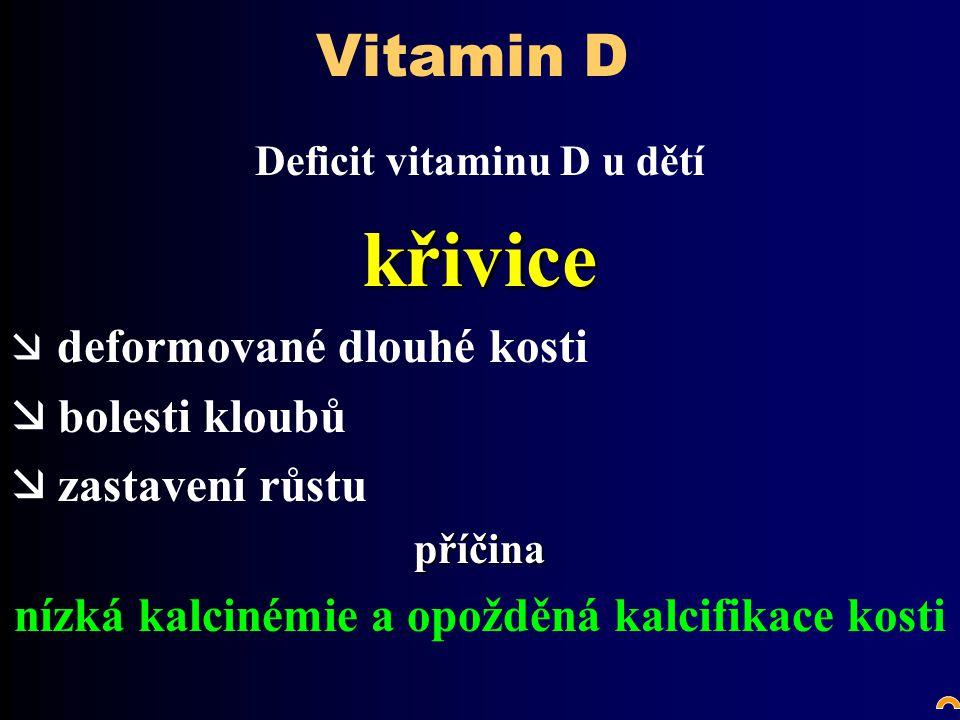 Vitamin D Deficit vitaminu D u dětíkřivice æ deformované dlouhé kosti æ bolesti kloubů æ zastavení růstupříčina nízká kalcinémie a opožděná kalcifikace kosti