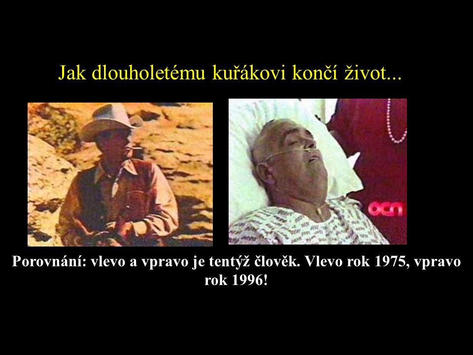 Jak dlouholetému kuřákovi končí život... Porovnání: vlevo a vpravo je tentýž člověk. Vlevo rok 1975, vpravo rok 1996!