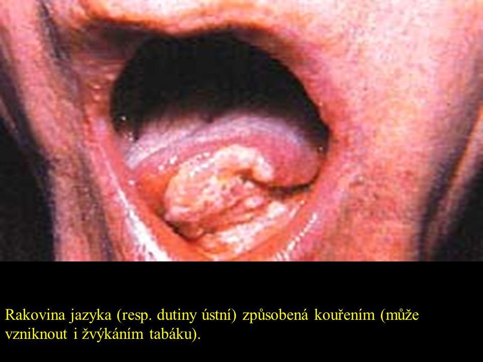 Odumření tkáně z periferní nedokrvenosti způsobené kouřením.