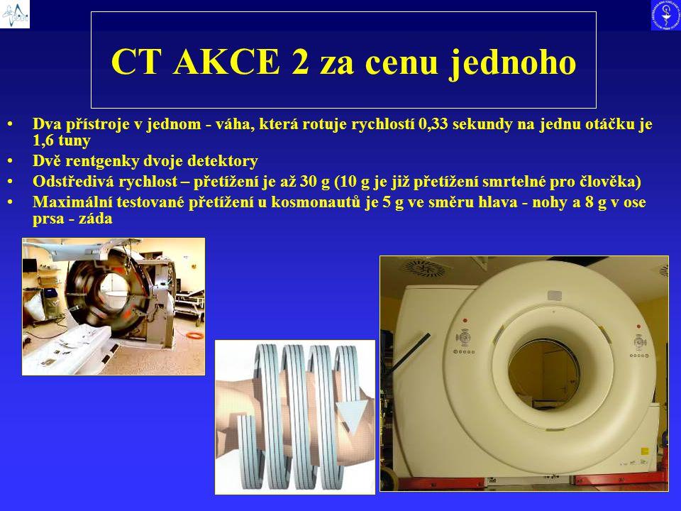 CT AKCE 2 za cenu jednoho Dva přístroje v jednom - váha, která rotuje rychlostí 0,33 sekundy na jednu otáčku je 1,6 tuny Dvě rentgenky dvoje detektory