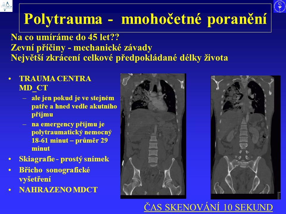 Polytrauma - mnohočetné poranění TRAUMA CENTRA MD_CT –ale jen pokud je ve stejném patře a hned vedle akutního příjmu –na emergency příjmu je polytraum