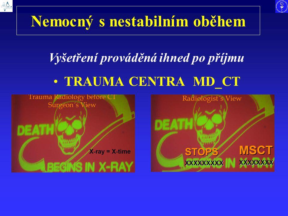 Nemocný s nestabilním oběhem TRAUMA CENTRA MD_CT Vyšetření prováděná ihned po příjmu