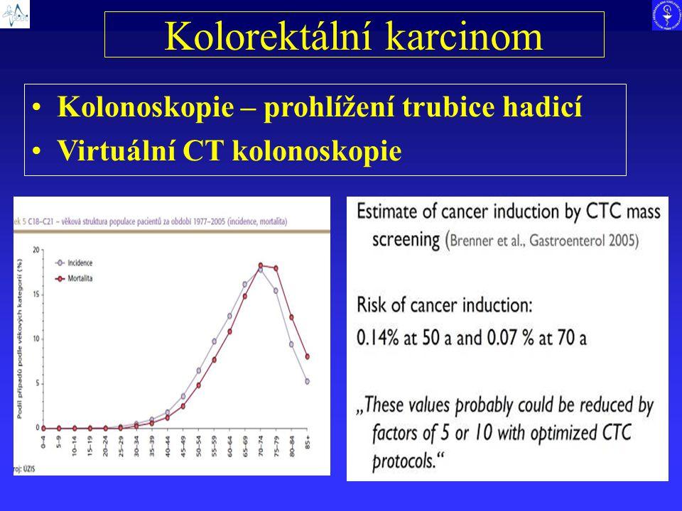 Kolorektální karcinom Kolonoskopie – prohlížení trubice hadicí Virtuální CT kolonoskopie