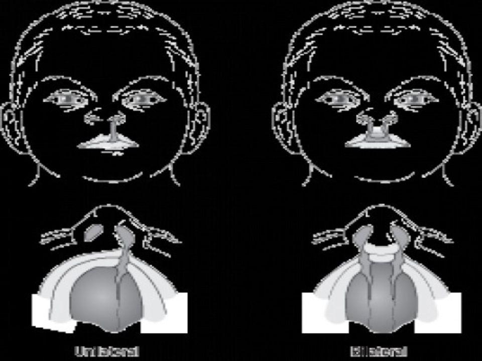 Primární operace rtu dříve od 3 měsíců věku rekonstrukce rtu, ale i nosu včetně repozice septa Millard, Tennison - Randal