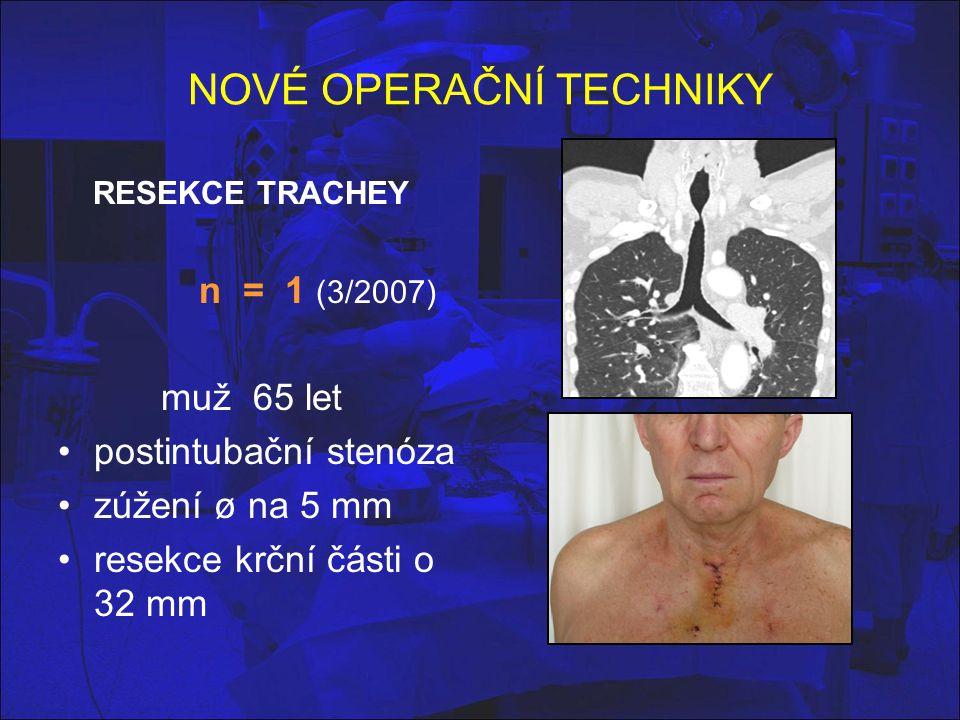 NOVÉ OPERAČNÍ TECHNIKY RESEKCE TRACHEY n = 1 (3/2007) muž 65 let postintubační stenóza zúžení ø na 5 mm resekce krční části o 32 mm