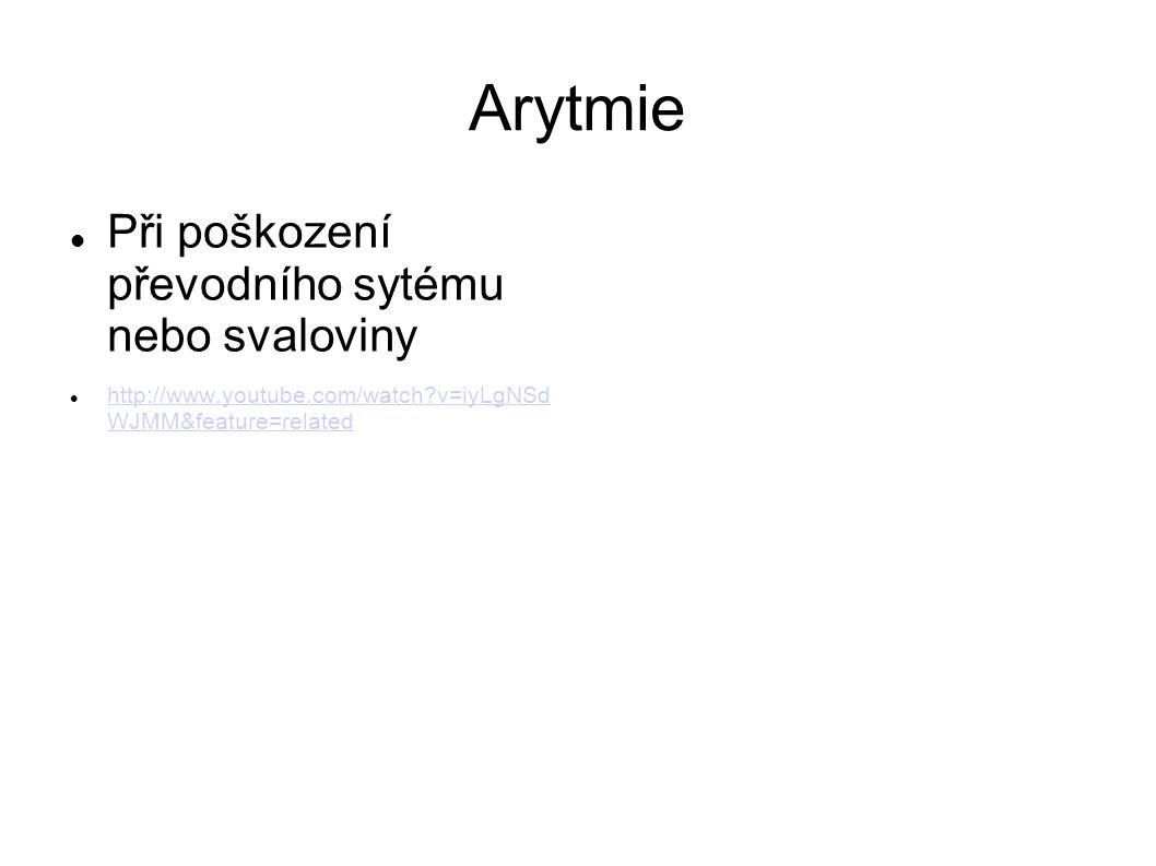 Arytmie Při poškození převodního sytému nebo svaloviny http://www.youtube.com/watch?v=iyLgNSd WJMM&feature=related http://www.youtube.com/watch?v=iyLg