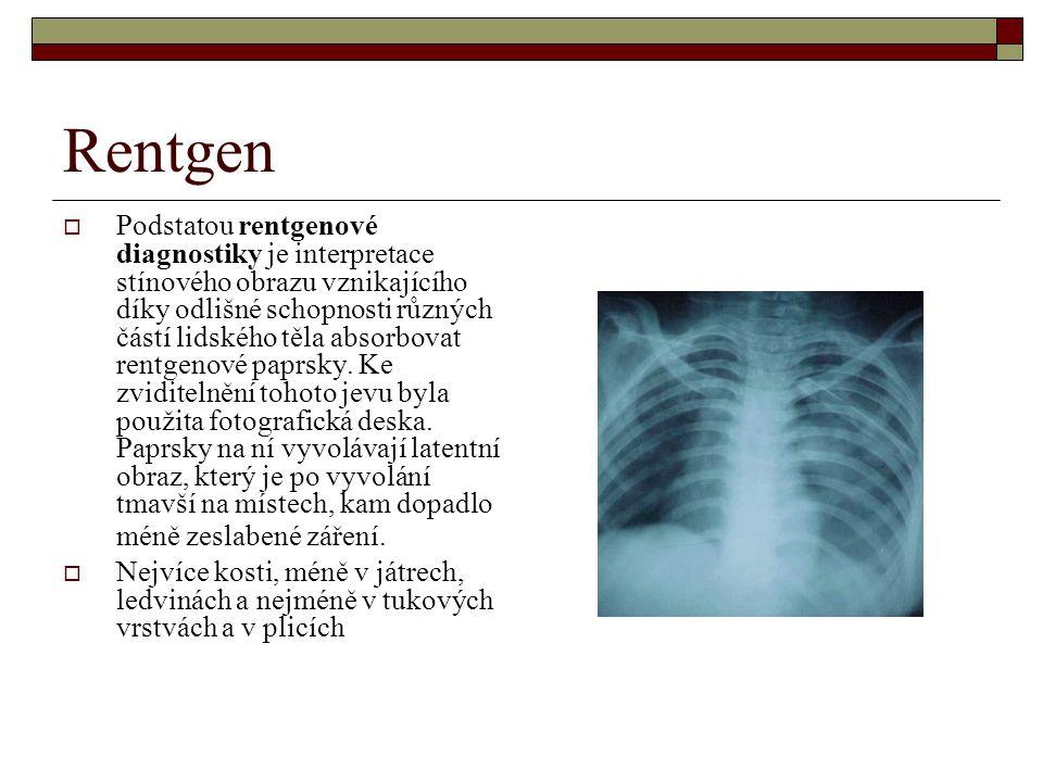 Rentgen  Podstatou rentgenové diagnostiky je interpretace stínového obrazu vznikajícího díky odlišné schopnosti různých částí lidského těla absorbovat rentgenové paprsky.