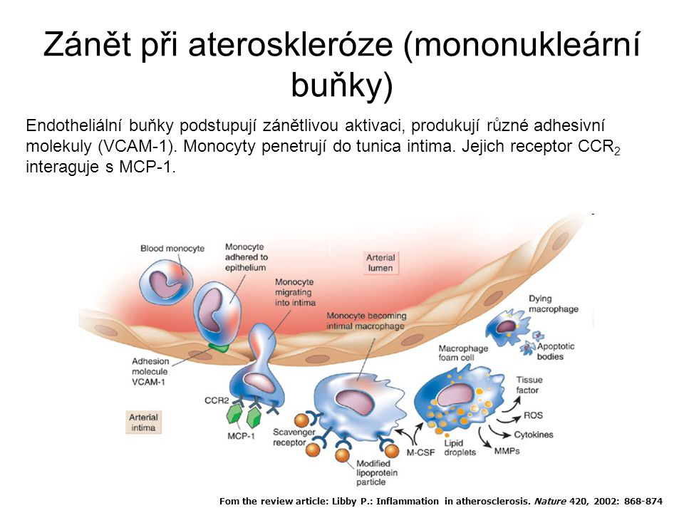 Zánět při ateroskleróze (mononukleární buňky) Fom the review article: Libby P.: Inflammation in atherosclerosis. Nature 420, 2002: 868-874 Endotheliál