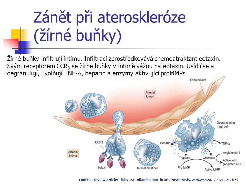 Zánět při ateroskleróze (žírné buňky) Fom the review article: Libby P.: Inflammation in atherosclerosis. Nature 420, 2002: 868-874 Žírné buňky infiltr