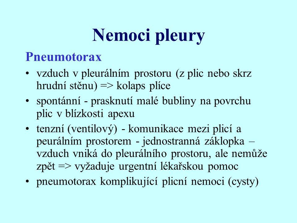 Nemoci pleury Pneumotorax vzduch v pleurálním prostoru (z plic nebo skrz hrudní stěnu) => kolaps plíce spontánní - prasknutí malé bubliny na povrchu p