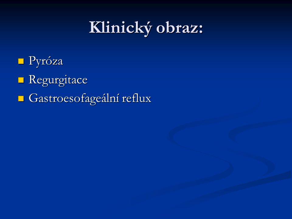 Klinický obraz: Pyróza Pyróza Regurgitace Regurgitace Gastroesofageální reflux Gastroesofageální reflux