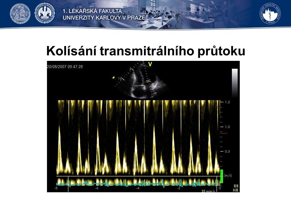 Kolísání transmitrálního průtoku
