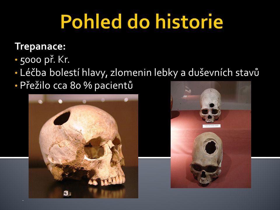 Trepanace: 5000 př. Kr. Léčba bolestí hlavy, zlomenin lebky a duševních stavů Přežilo cca 80 % pacientů -