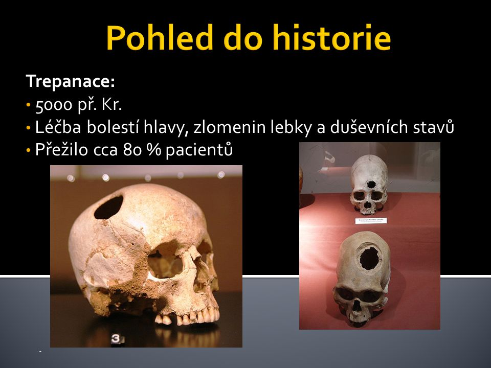 Trepanace: 5000 př. Kr.