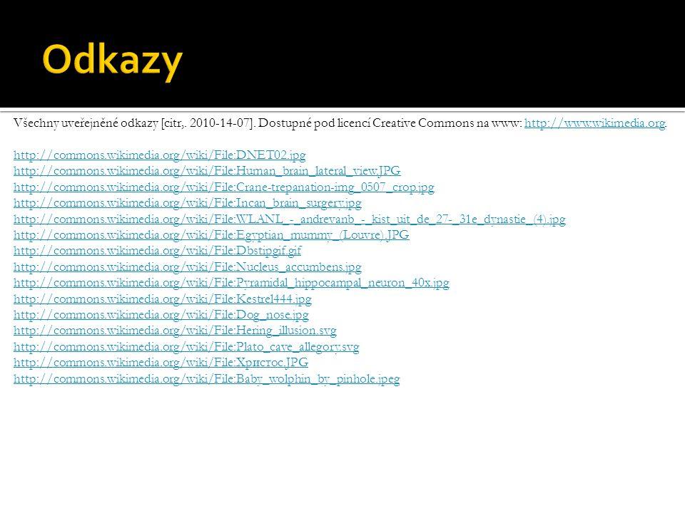 Všechny uveřejněné odkazy [citr,. 2010-14-07].