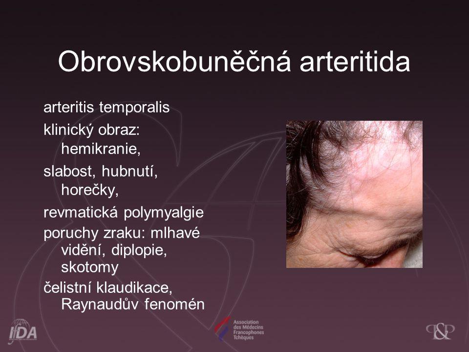 Obrovskobuněčná arteritida arteritis temporalis klinický obraz: hemikranie, slabost, hubnutí, horečky, revmatická polymyalgie poruchy zraku: mlhavé vi